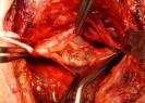 Ulcera_Carotide
